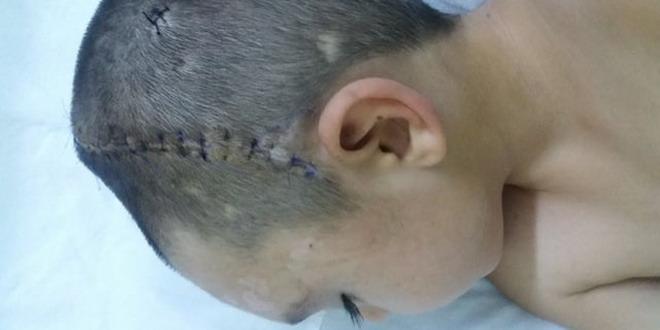 copil operatie cap